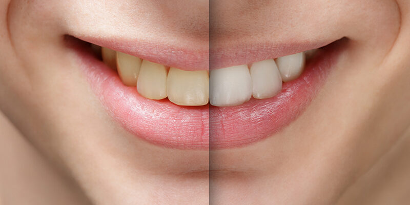 young man smile before and after teeth whitening| Best Dentists In Toronto