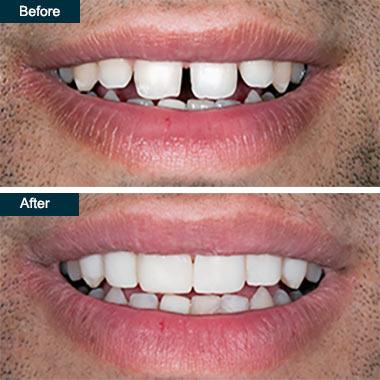 Bonding  Best Dentists In Toronto