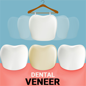 Veneers | Best Dentists IN Toronto