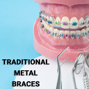 Traditional Braces| Dentists In Toronto