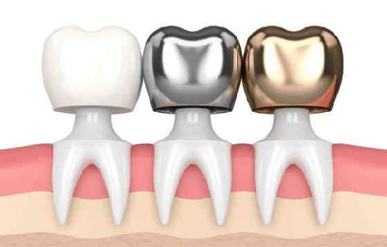 Dental Crown | Dentist in toronto