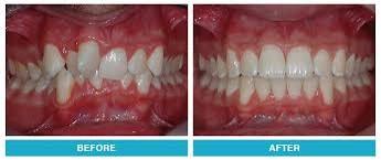 Orhtodontics| BEst Dentists In Toronto