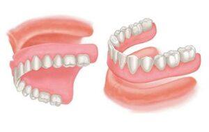 Dentures  Best Dentists In Toronto